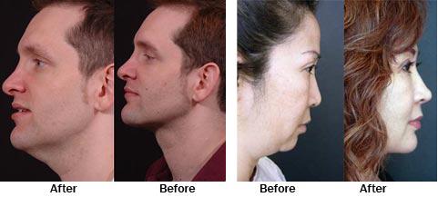 Liposuction Under Chin